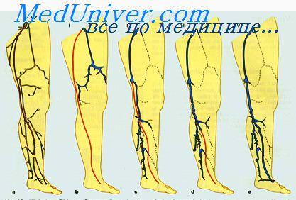 Тромбозы вен нижних конечностей и таза. Клиника тромбоза вен