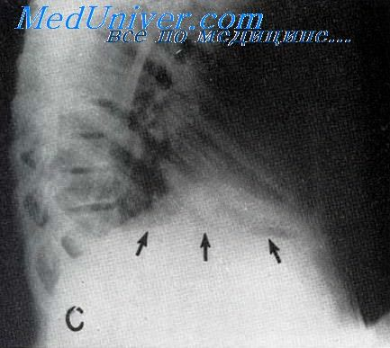 Рентгенограмма при поддиафрагмальном абсцессе