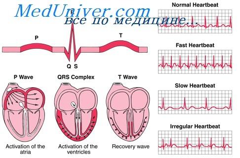 Трепетание и фибрилляция желудочков. Синусовая брадикардия