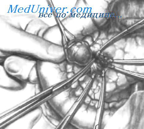 Что такое энуклеация поджелудочной железы thumbnail