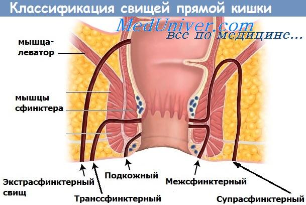Операция по иссечению анального свища фото