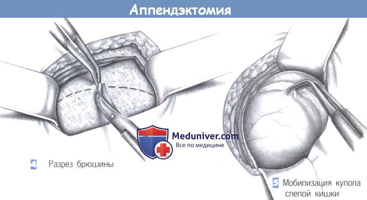 Этапы и техника операции при аппендиците - аппендэктомии