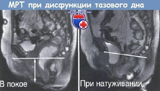 Дисфункция тазового дна на МРТ