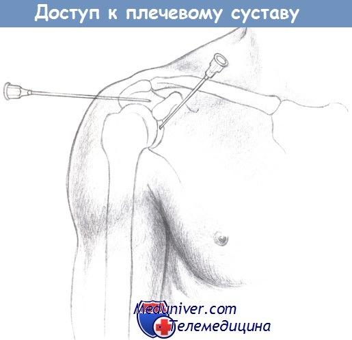Пункции суставов и суставных сумок введение лекарственных веществ скрипят и болят суставы в коленях и плечах