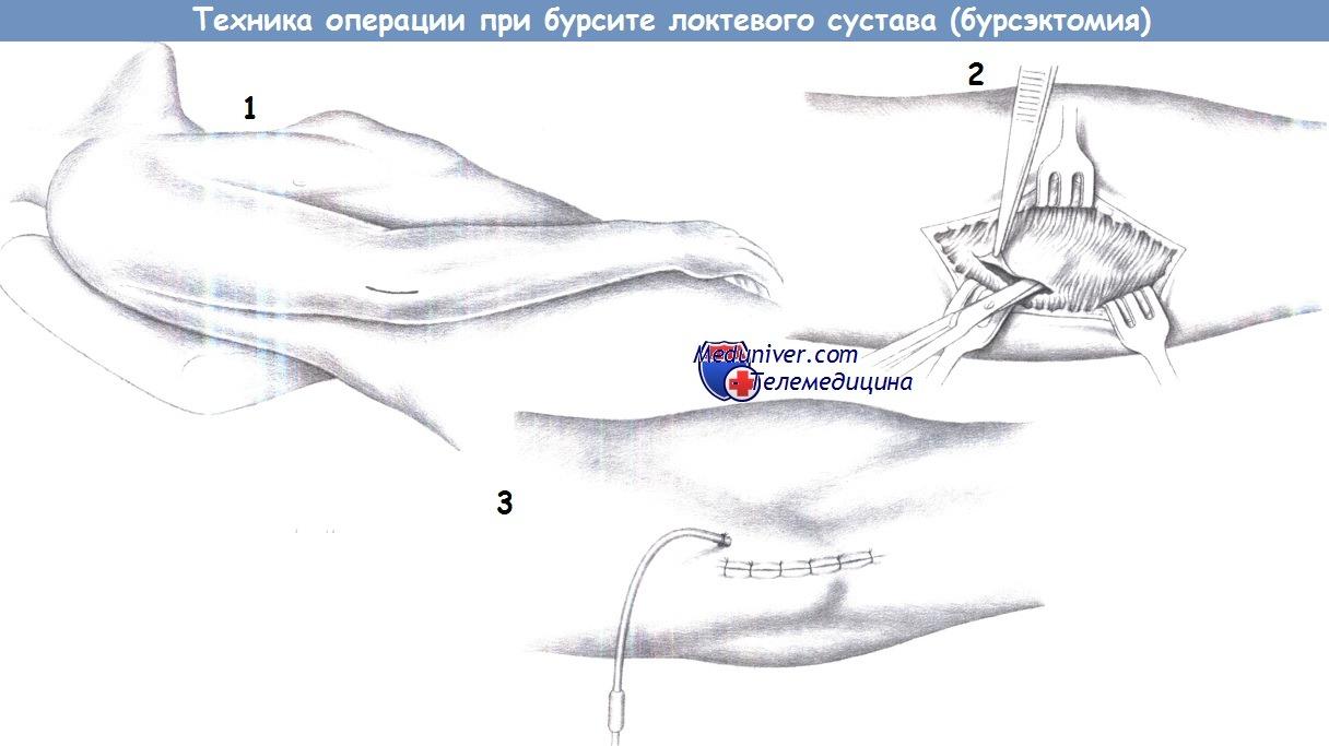 Бурсэктомия локтевого сустава ход операции артроз суставов плеча