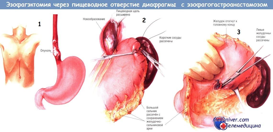 Эзофагэктомия