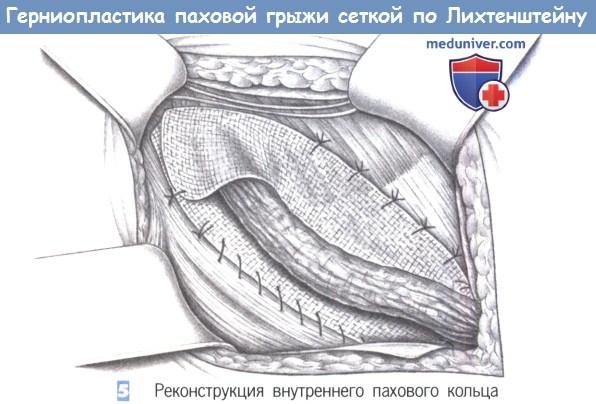 Протокол операции при прямых паховых грыж thumbnail