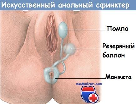 Bowel Incontinence