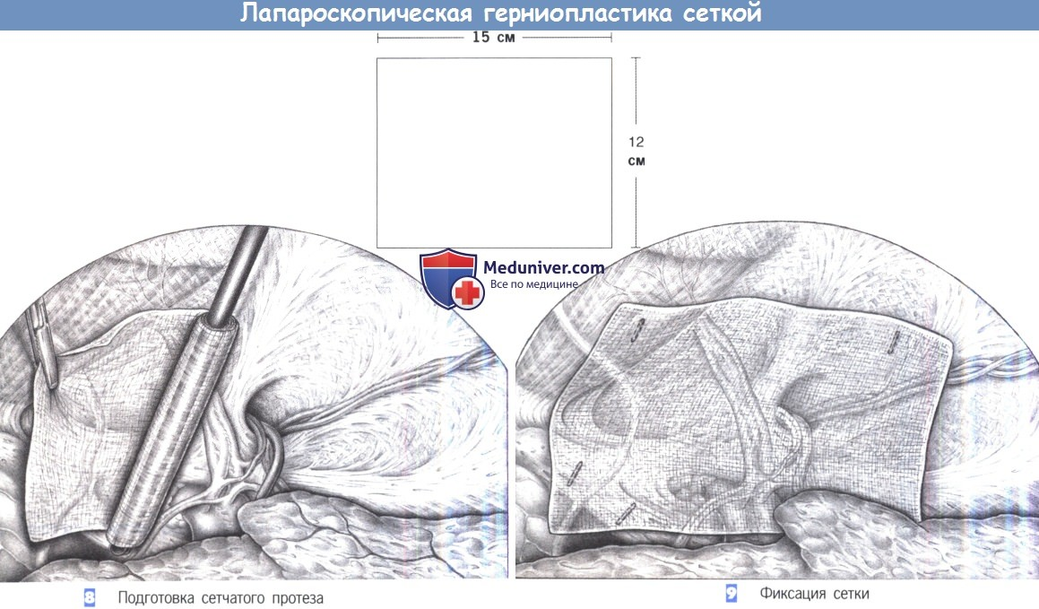 Этапы и техника лапароскопической пластики паховой грыжи сеткой
