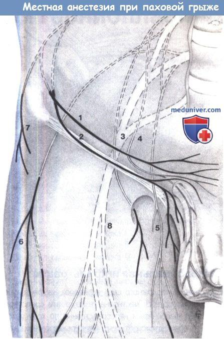 Местная анестезия при паховой грыже