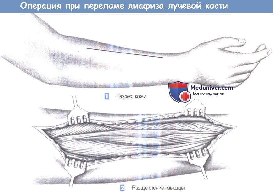 Операция остеосинтеза пластиной при переломе диафиза лучевой кости
