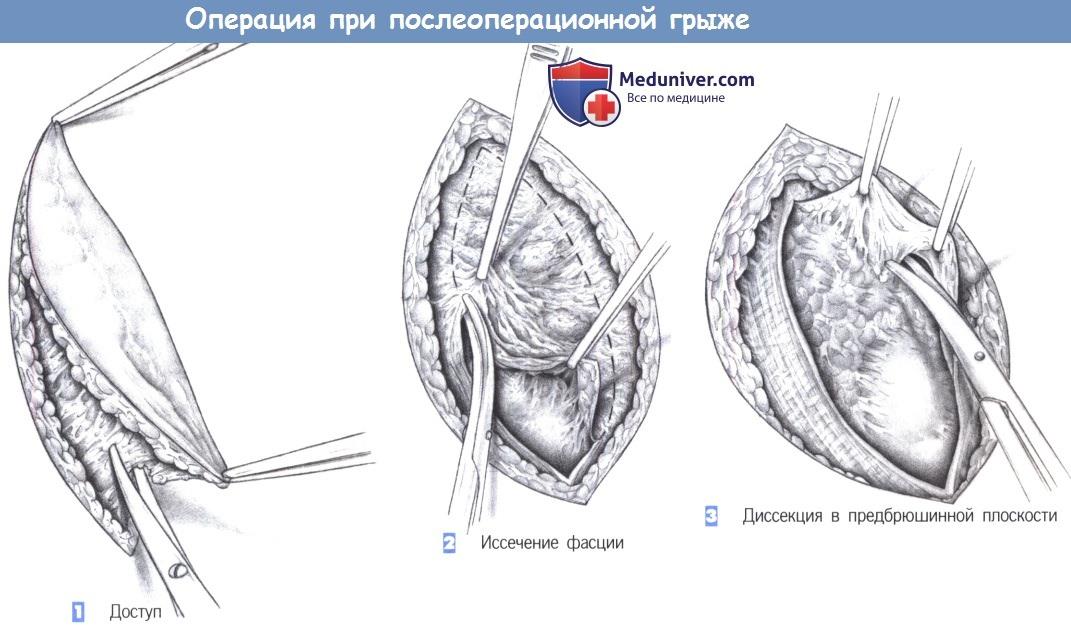 Этапы и техника пластики послеоперационной грыжи сеткой и местными тканями