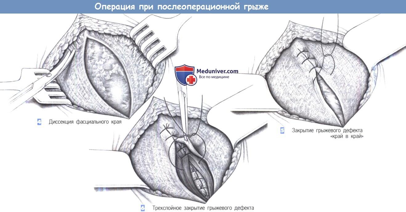 Хирургическое лечение послеоперационных грыж thumbnail