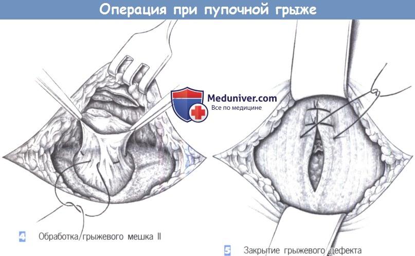 Оперативная хирургия пупочная грыжа thumbnail