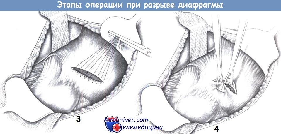 Этапы операции при разрыве диафрагмы