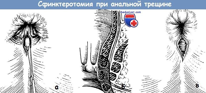 Сфинктеротомия при анальной трещине