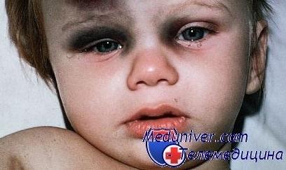Шишка под глазом у ребенка. Шишка у ребенка. Zdorovyj 18