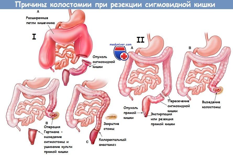 Методика реконструкции кишечника после операции Гартмана