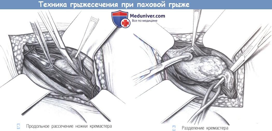 Паховые грыжи у мужчин методы пластики thumbnail