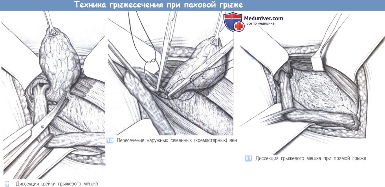 Грыжесечение косой паховой грыжи thumbnail