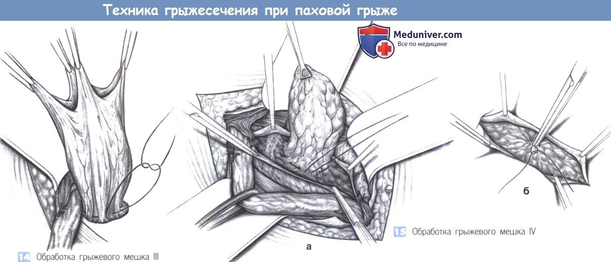 Этапы и техника грыжесечения при паховой грыже