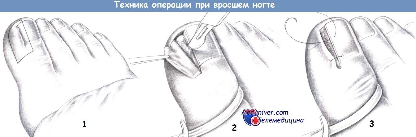Этапы операции при вросшем ногте