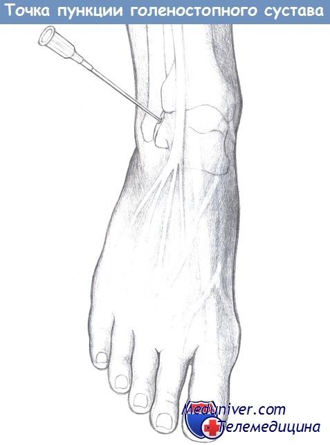 Пункции суставов и суставных сумок введение лекарственных веществ лазерный аппарат для лечения суставов купить