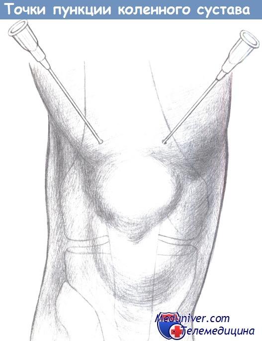 Операции на нижних конечностях. Пункция коленного сустава. Методика пункции коленного сустава. Как пунктировать коленный сустав