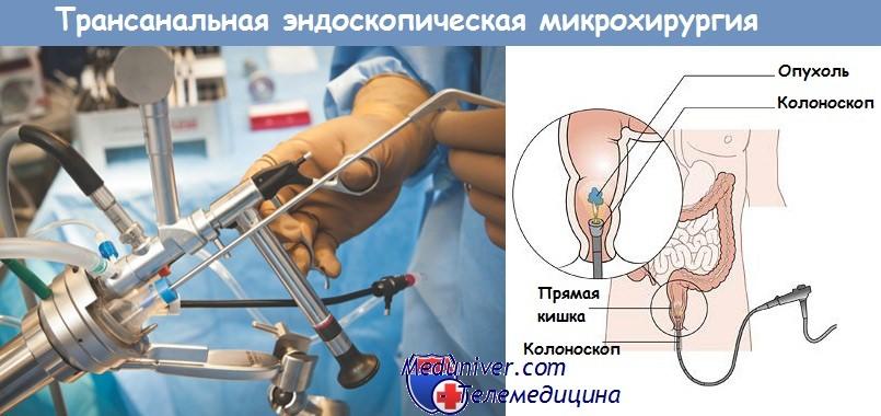 Трансанальной эндоскопической микрохирургии