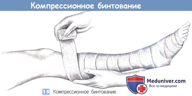 Бандаж раздвинутые ноги фото, порно русские и китайские