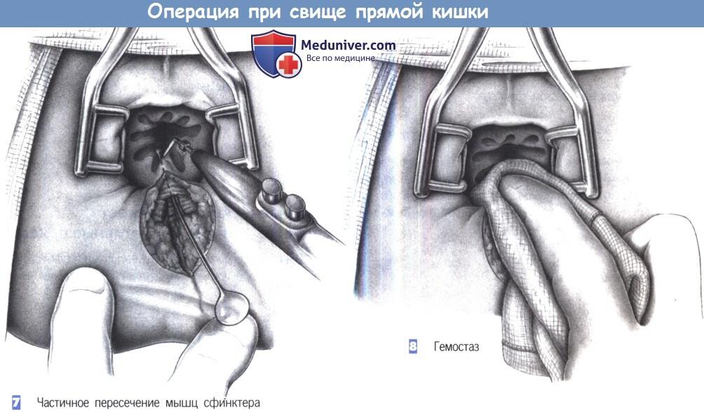 Импотенция после операции прямой кишки