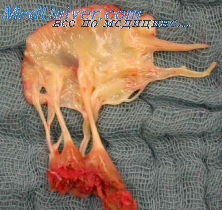 Жалобы при инфаркте миокарда. Типы дебюта инфаркта миокарда