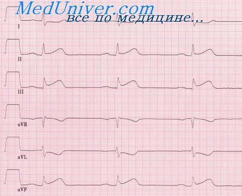 Трансмуральный инфаркт миокарда. Изменения ЭКГ при крупноочаговом ...