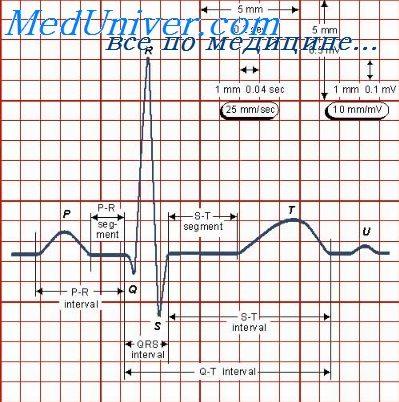 Зубец S ЭКГ. Комплекс QRS электрокардиограммы