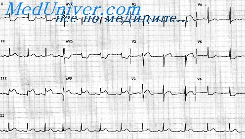 Инфаркт миокарда задней стенки левого желудочка