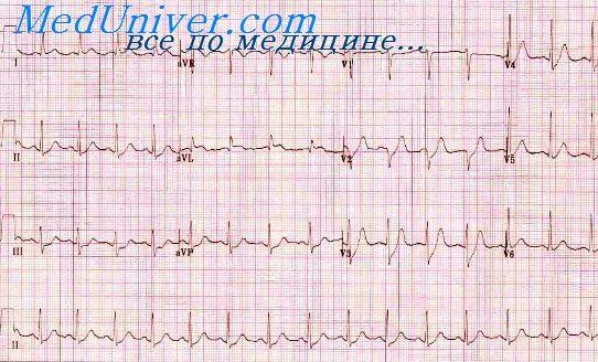 Высокий переднебоковой инфаркт. Инфаркты задней стенки левого ...