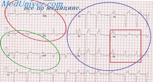 Дифференциальная диагностика ЭКГ при инфаркте миокарда. ЭКГ при ...