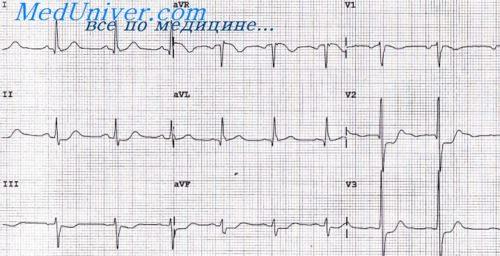 ЭКГ признаки гипертрофии правого желудочка. ЭКГ при пороках ...