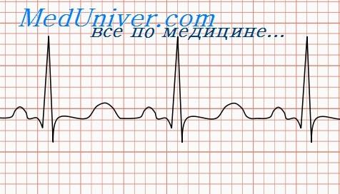 Кардиограмма здорового сердца