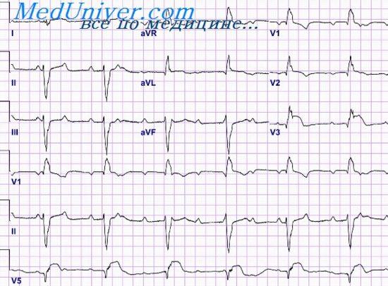 Электрокардиограмма при горизонтальном положении сердца ...