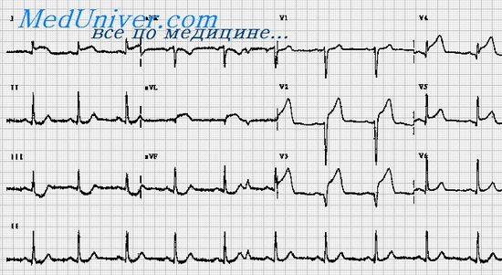 ЭКГ при высоком (базальном) переднем инфаркте миокарда. Признаки ...
