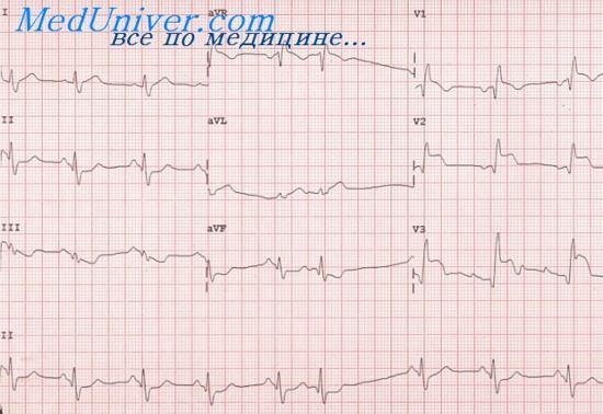 Инфаркт задней стенки левого желудочка. Задненижний инфаркт миокарда