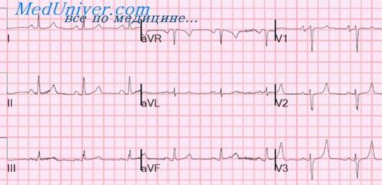 ЭКГ при синусовой аритмии. Предсердные выскальзывающие ритмы