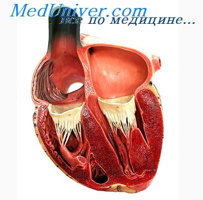 Поражение атеросклерозом коронарных артерий. Поражение ...