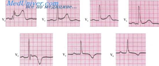 Синдром ранней реполяризации желудочков. ЭКГ при ранней ...