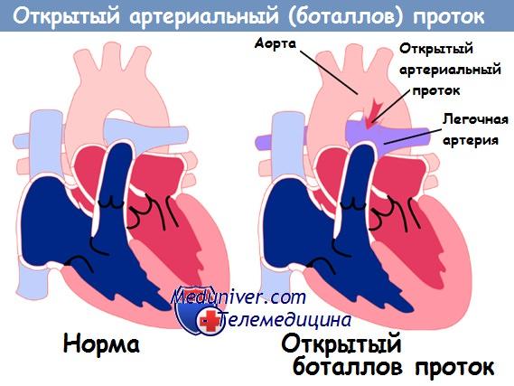 Открытый артериальный (Баталов) проток у детей: благоприятен ли прогноз 3