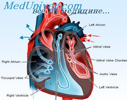 Сердечная недостаточность 3 ст