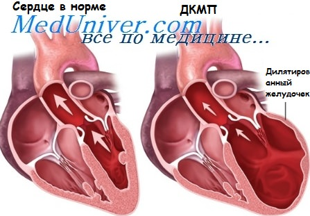 Дилятационная кардиомиопатия