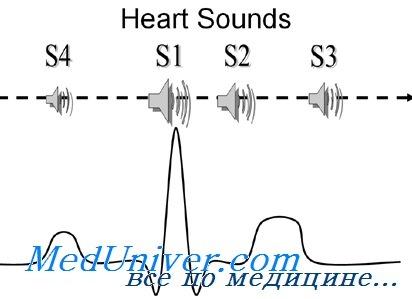 диастолические тони серця