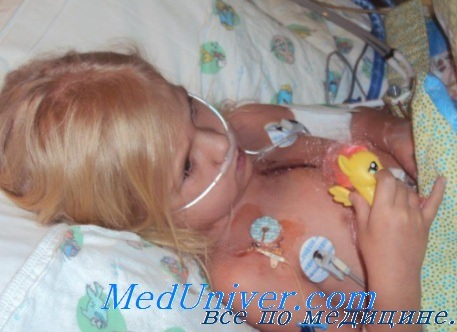 Выживаемость после пересадки сердца. Тенденции трансплантации сердца